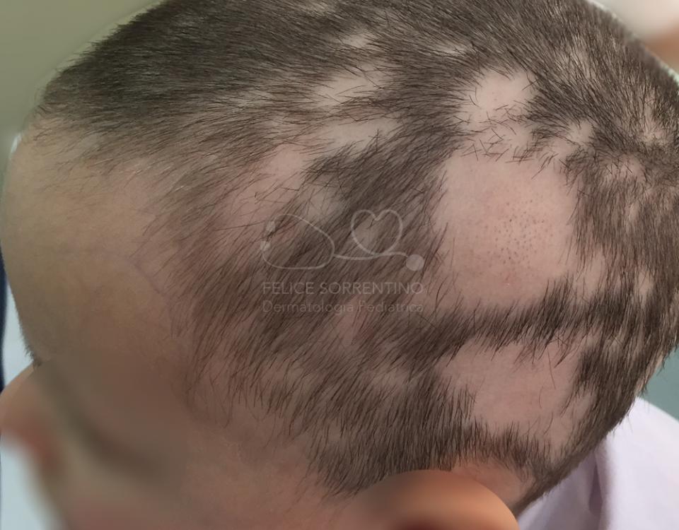 """""""alopecia areata bambino"""""""